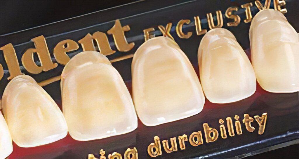 Denti Goldent Exclusive